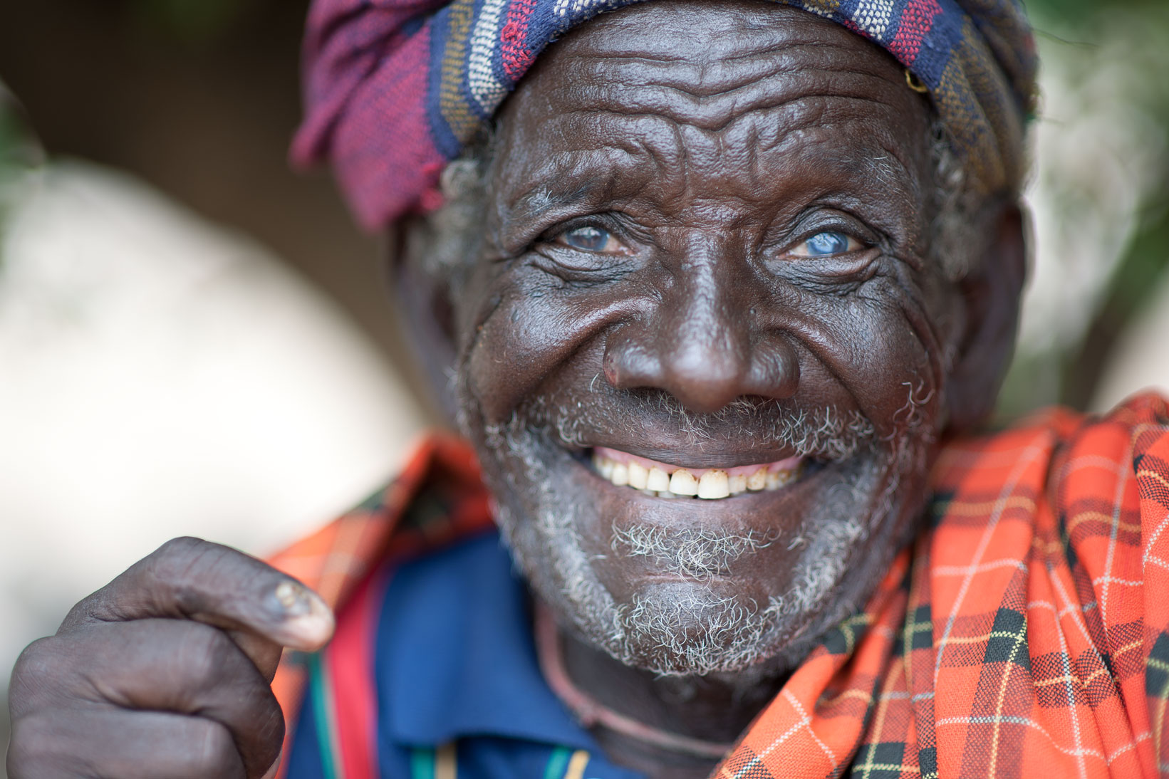 Arbore tribal elder with cataracts